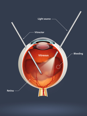 High quality raster illustration of retinal detachment with clipping path.
